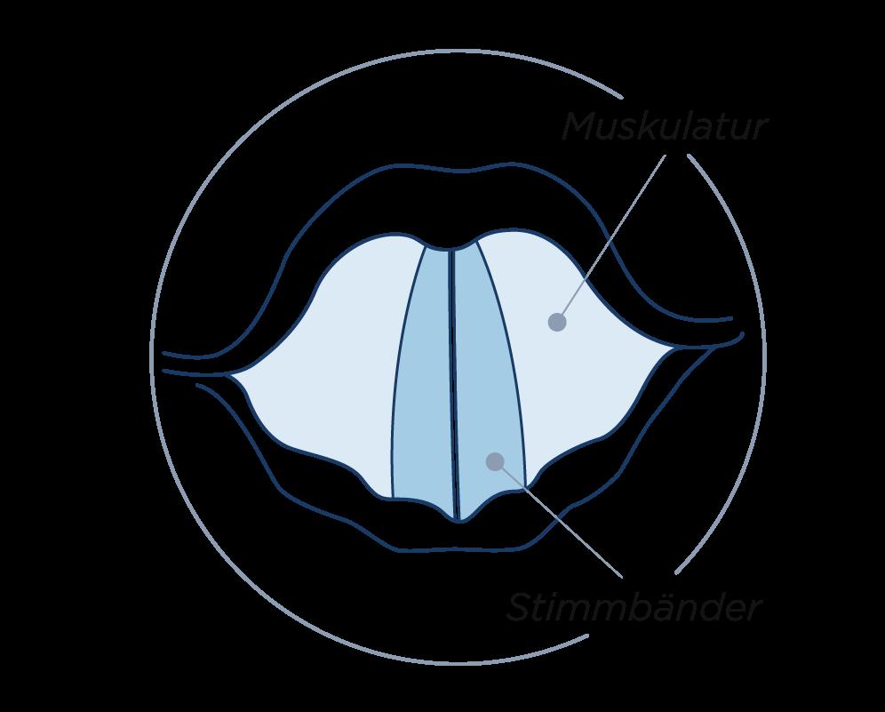 Stimmbandkrampf - Adduktor- Typ der laryngealen Dystonie