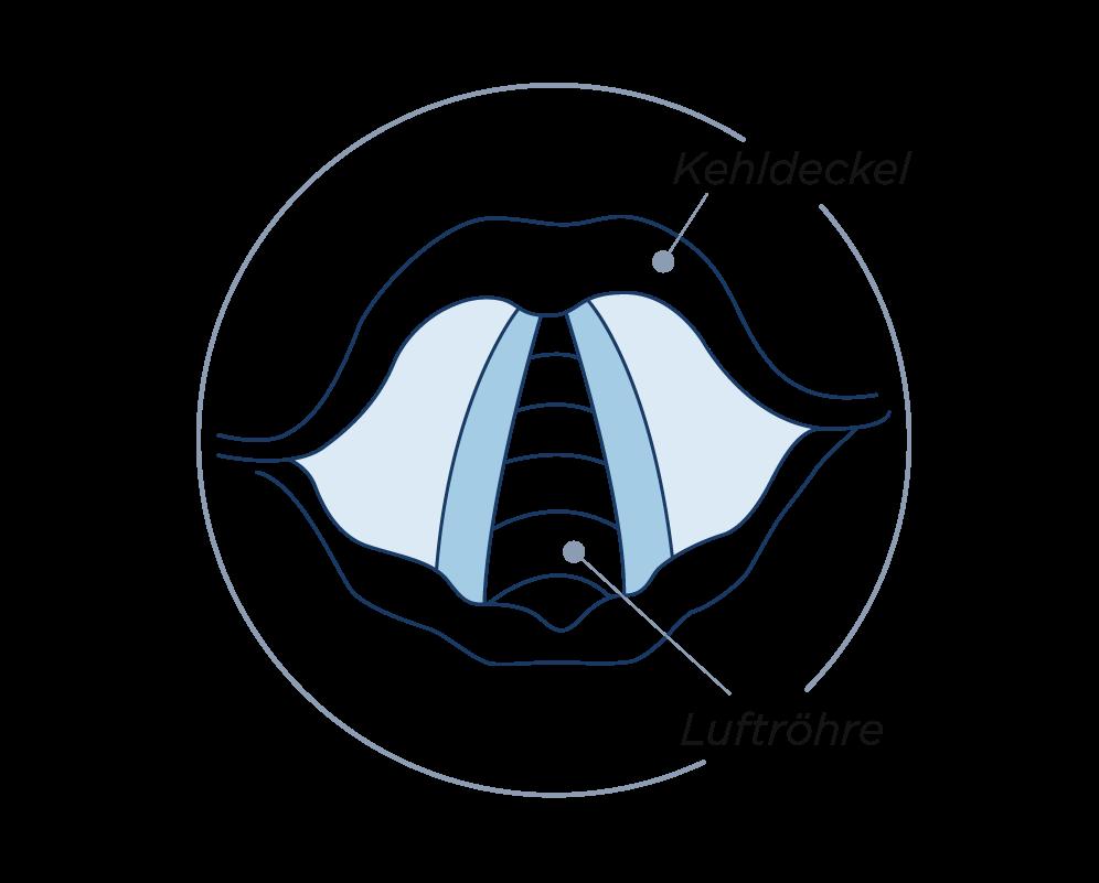 Flüsterstimme - Abduktor- Typ der laryngealen Dystonie