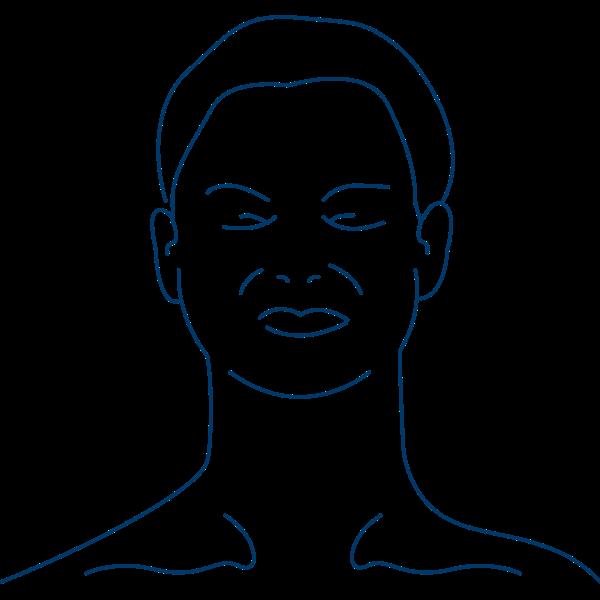 Lidkrampf oder Blepharospasmus bei Dystonie
