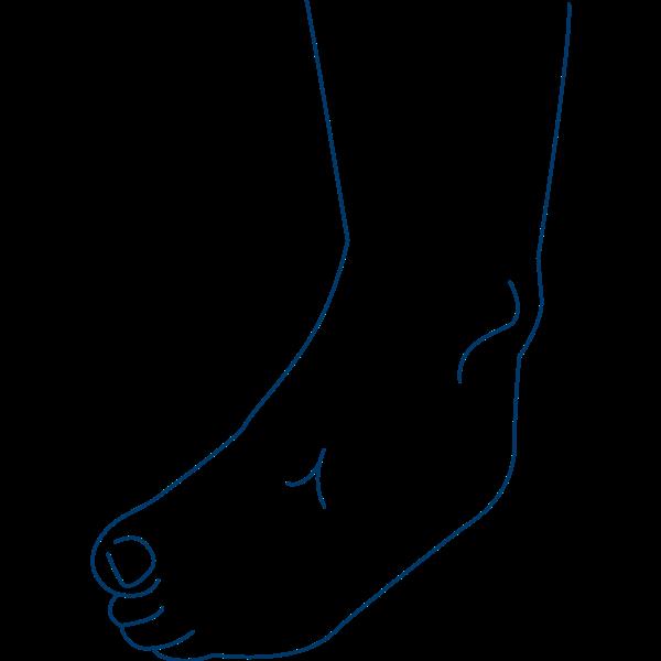 Klumpfuß durch Fußkrämpfe bei Dystonie