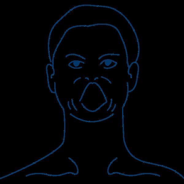 Kieferkrampf und Zungenkrampf sind Smptome bei Oromandibuläre Dystonie