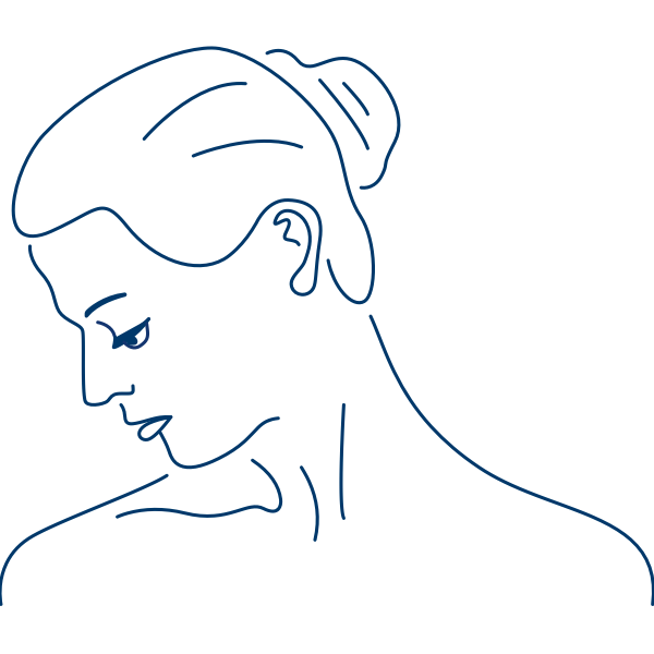 Der Schiefhals - ein Symptom bei zervikaler Dystonie